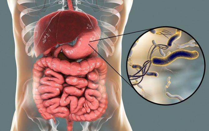 Kişinin mədəsində qastrit, bakteriya varsa - Arvadı da müalicə olunmalıdır