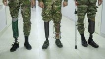 Dövlət Agentliyi: Qazilərin protezlə təminatı üçün bütün tədbirlər görülür
